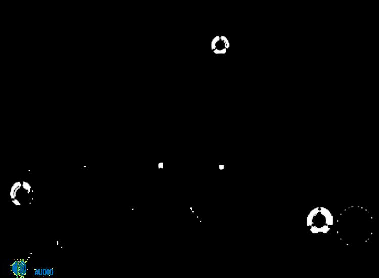Dali Zensor 5 5.0-ás hangfal szett